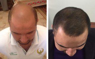 До и После лечение Minoxidil и Rogaine в Ташкенте
